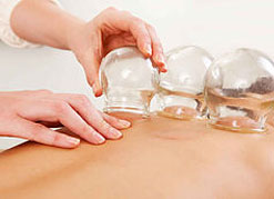 cupping-service