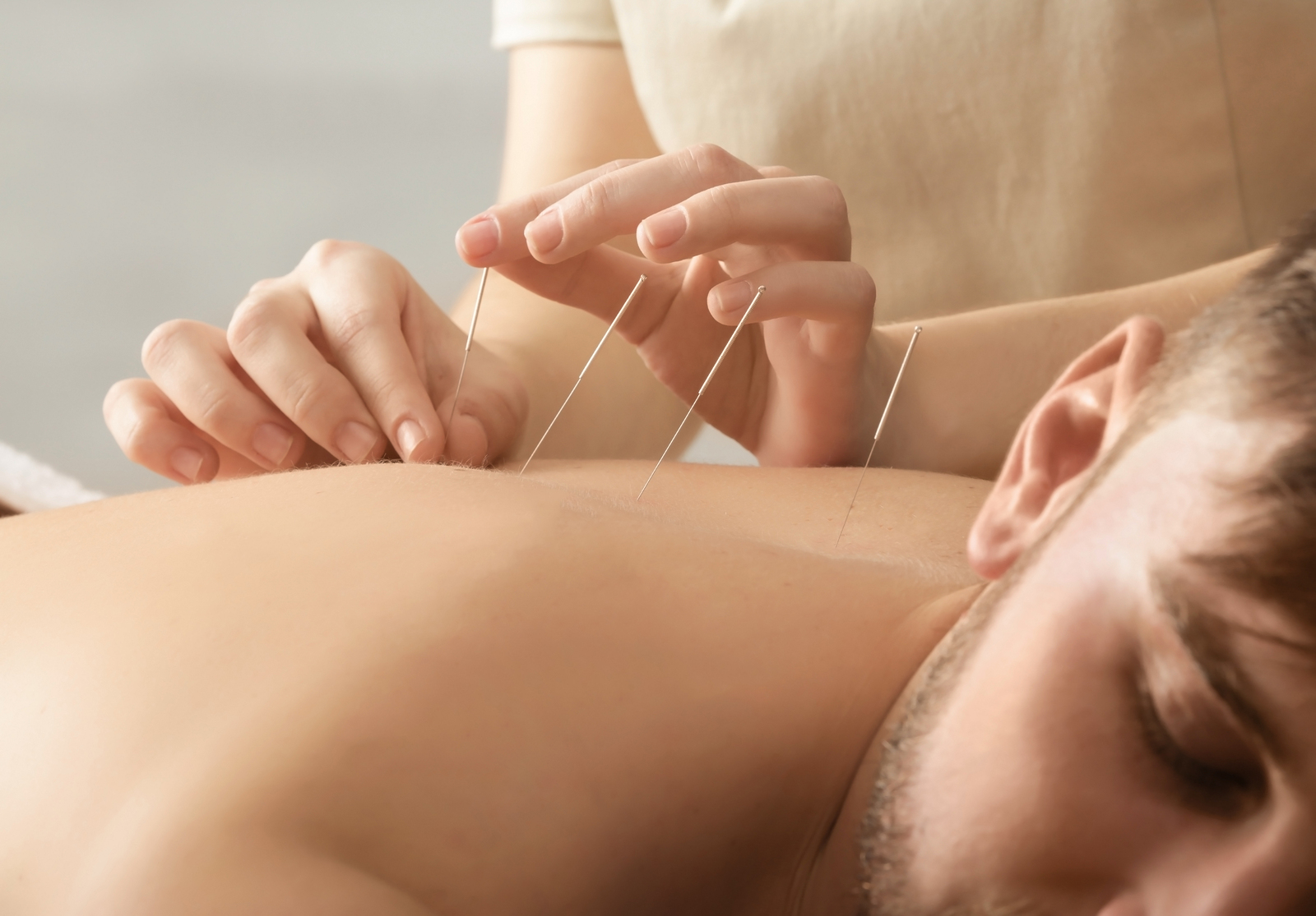 professional acupuncture in amarillo texas